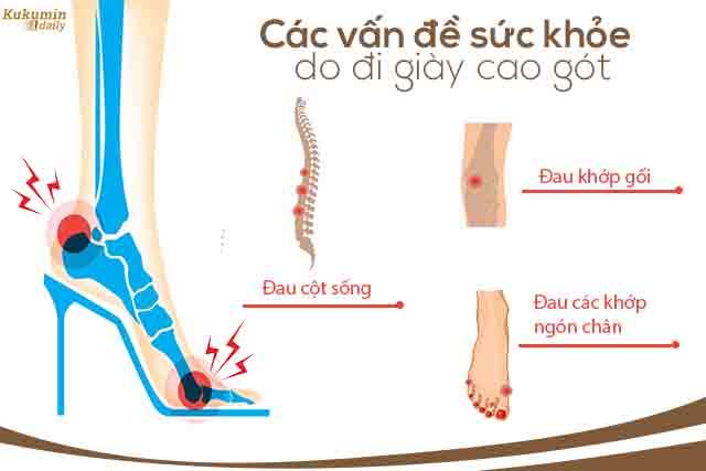 thường xuyên đi gày cao gót dẫn tới thoái hóa khớp xương: cột sống, ngón chân, đầu gối